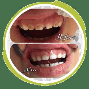 ترميم دندانهاي قدامي شيري كودك ٤ساله