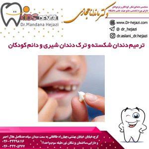 ترمیم دندان شکسته و ترک دندان شیری و دائم کودکان