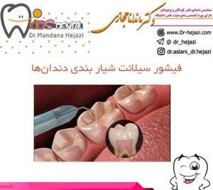 فیشور سیلانت شیار بندی دندانها