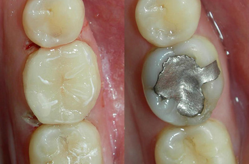 Replacing Silver Fillings