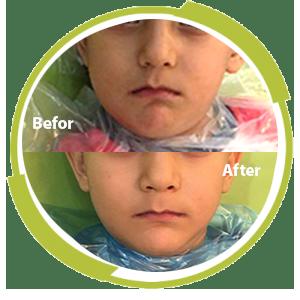 درمان آبسه دندان