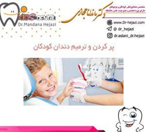 پر کردن و ترمیم دندان کودکان