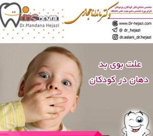 علت بوی بد دهان در کودکان