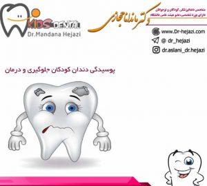 پوسیدگی دندان کودکان درمان پوسیدگی دندان
