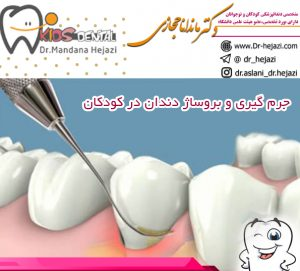 جرم گیری و بروساژ دندان در کودکان