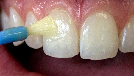 پوسیدگی دندان کودکان جلوگیری و درمان