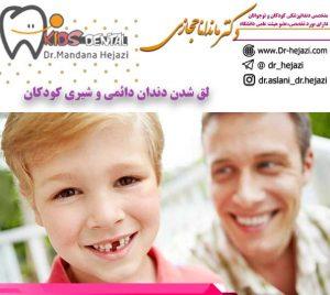 لق-شدن-دندان-دائمی-و-شیری-کودکان-و-اطفال