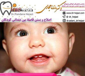 اصلاح-و-بستن-فاصله-بین-دندانی-کودکان