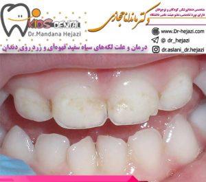 درمان-و-علت-لکههای-سیاه-سفید-قهوهای-و-زرد-روی-دندان