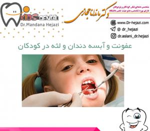 عفونت و آبسه دندان