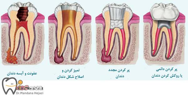 کاهش عفونت دندان
