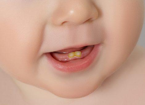 درمان و علت لکههای سیاه سفید قهوهای و زرد روی دندان