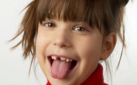 لق شدن دندان دائمی و شیری کودکان و اطفال