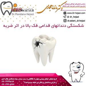 شكستگی دندانهای قدامی فک بالا