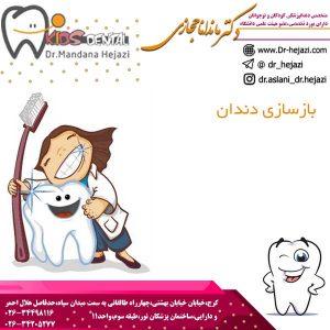 بازسازي كامل دندانها