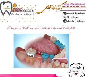 انواع فضا نگهدارنده بجای دندان شیری در کودکان و هزینه آن