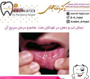 تبخال لب و دهان در کودکان علت علائم و درمان سریع آن