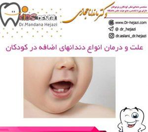 علت و درمان انواع دندانهای اضافه در کودکان