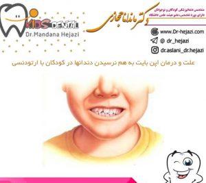 علت و درمان اپن بایت به هم نرسیدن دندانها در کودکان با ارتودنسی