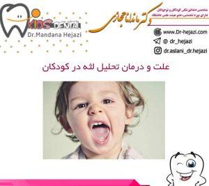 علت و درمان تحلیل لثه در کودکان