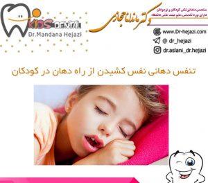 تنفس دهانی نفس کشیدن از راه دهان در کودکان