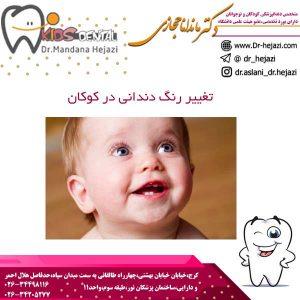 تغییر رنگ دندانی در کوکان