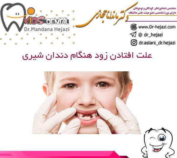علت افتادن زود هنگام دندان شیری