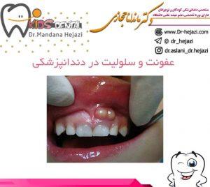 عفونت و سلولیت در دندانپزشکی