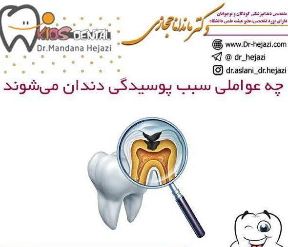 چه عواملی سبب پوسیدگی دندان میشوند
