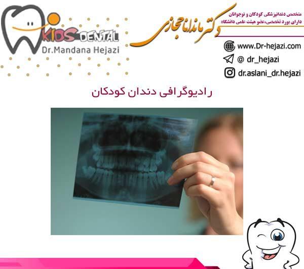 رادیوگرافی دندان کودکان