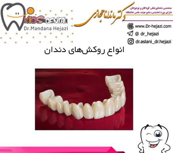 انواع روکشهای دندان