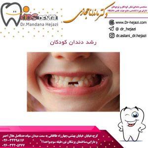 رشد دندان کودکان