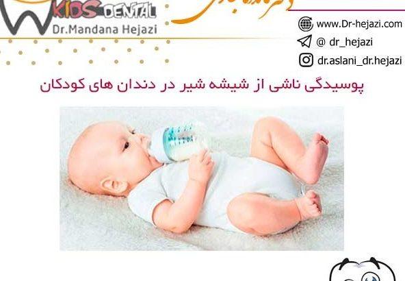 پوسیدگی ناشی از شیشه شیر در دندان های کودکان