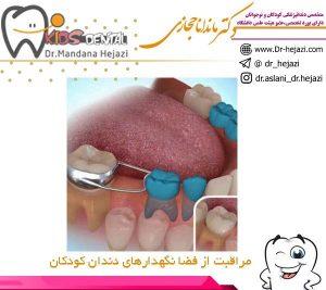 مراقبت از فضا نگهدارهای دندان کودکان