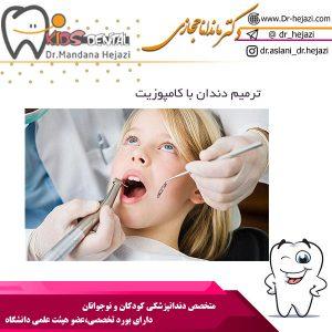 ترمیم دندان کودکان با کامپوزیت