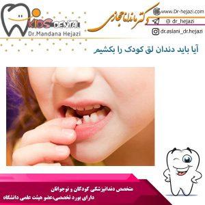 آیا باید دندان لق کودک را بکشیم