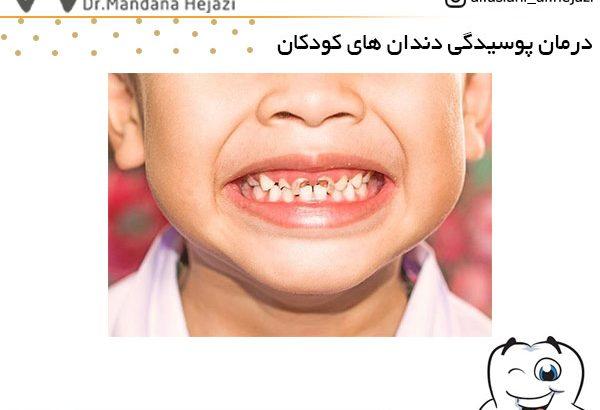 درمان پوسیدگی دندان های کودکان