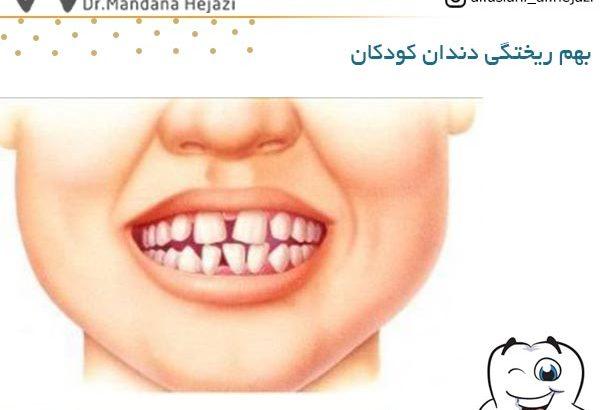 بهم ریختگی دندان کودکان