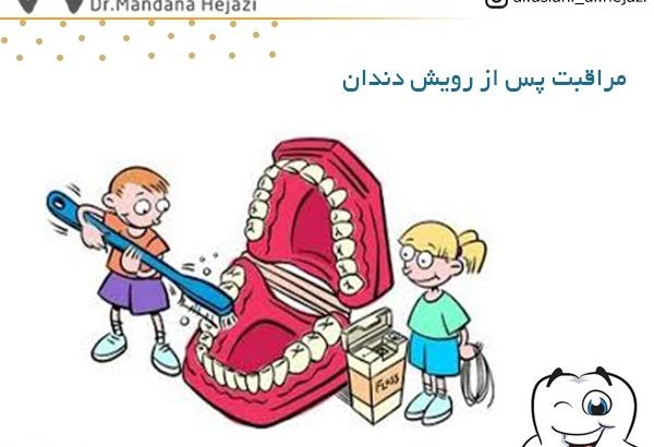 مراقبت پس از رویش دندان