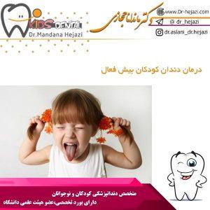 درمان دندان کودکان بیش فعال