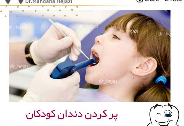 پر کردن دندان کودکان