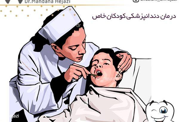 درمان دندانپزشکی کودکان خاص