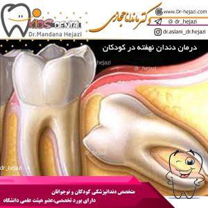 درمان دندان نهفته در کودکان