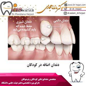 دندان اضافه در کودکان