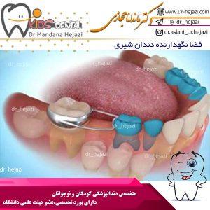فضا نگهدارنده دندان شیری