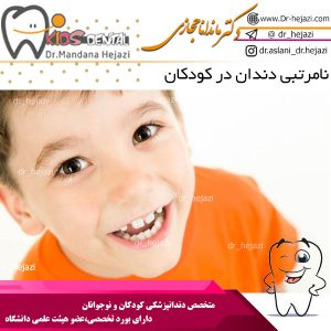 نامرتبی دندان در کودکان