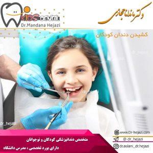 کشیدن دندان کودکان