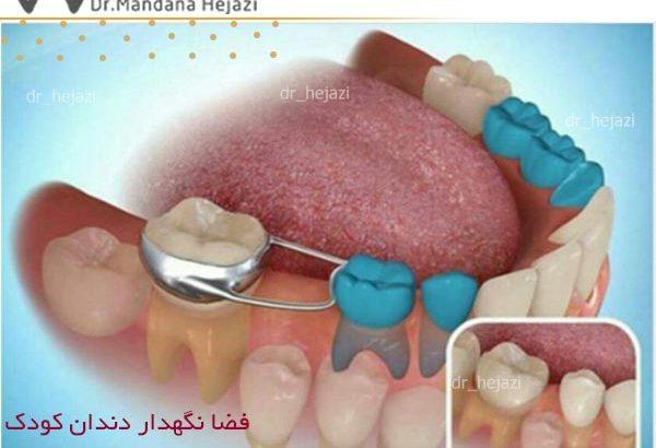 فضا نگهدار دندان کودک
