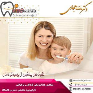 تکنیک های پیشگیری از پوسیدگی دندان