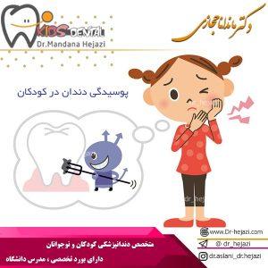 پوسیدگی دندان در کودکان